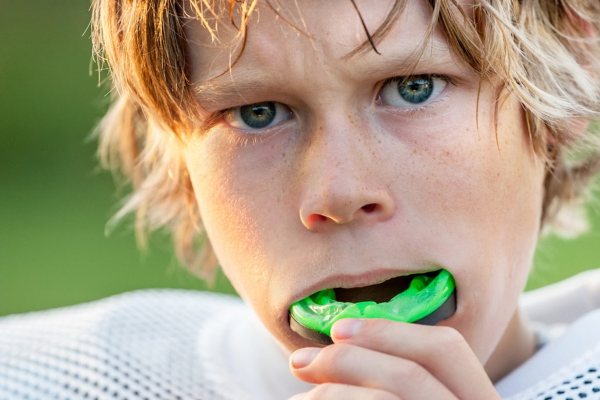how do mouthguards affect sports performance