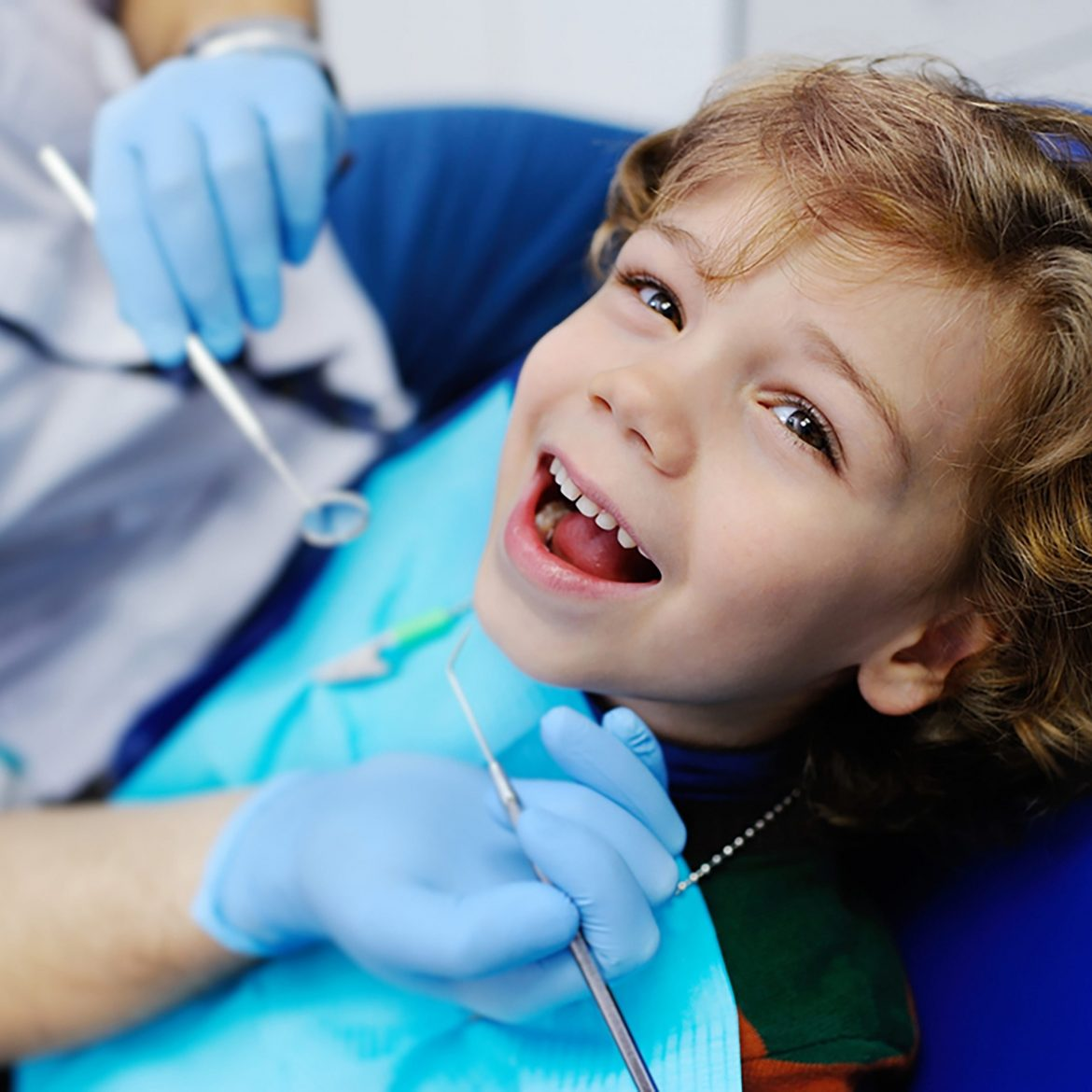 interesting-facts-about-dental-sealants