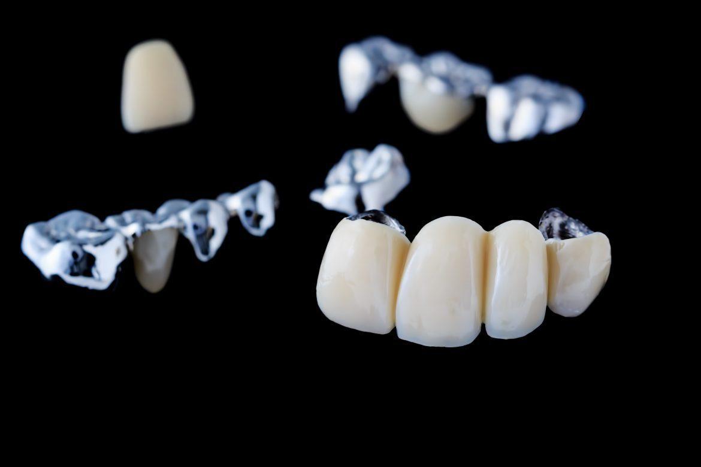 replacing teeth with dental bridges
